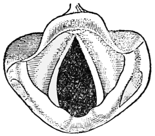 Vocal cords during inhalation